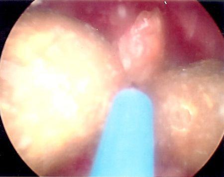laser lithotripsy