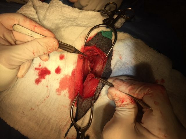 Intraoperative torn muscle #2