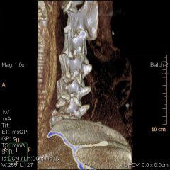 cervical spine ct scan