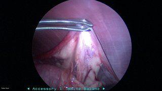 Laparoscopy #2
