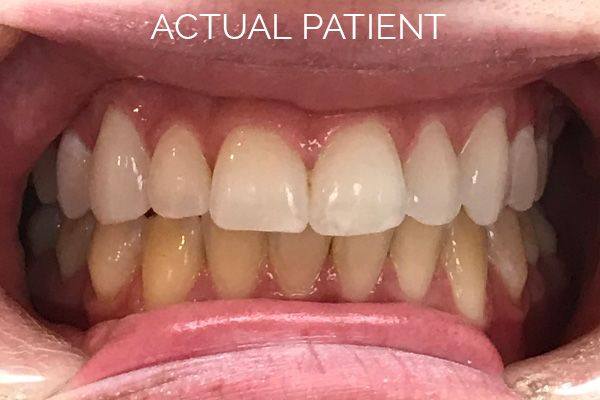 lady's teeth before and after teeth whitening
