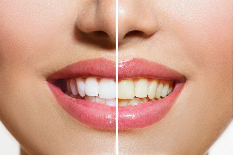teeth whitening larchmont ny