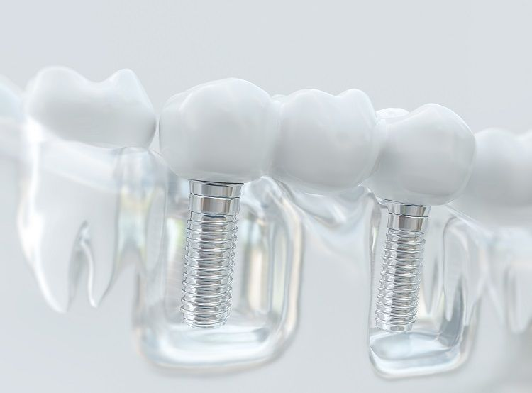 Causes of Dental Implant Failure