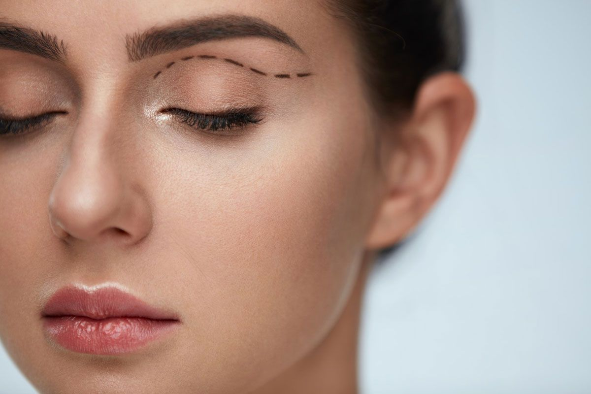What Can Blepharoplasty Do for Me?