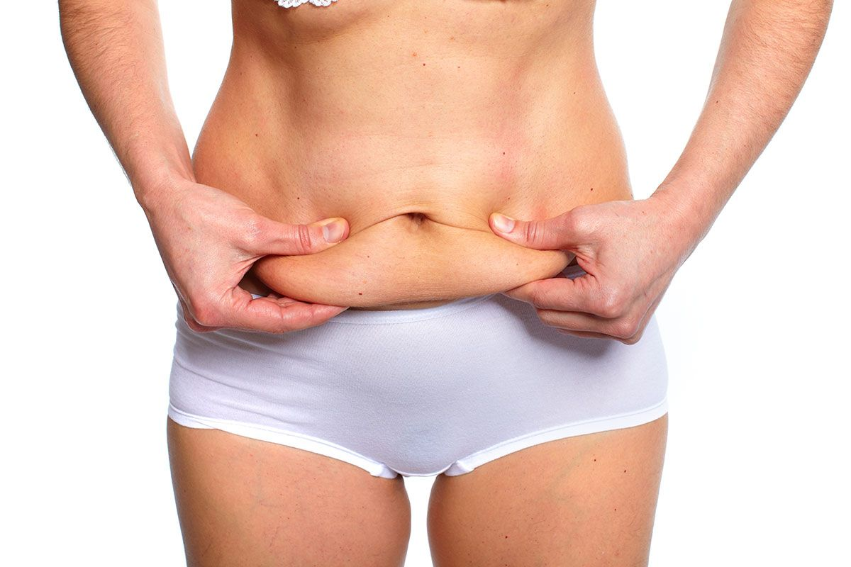If You're Unhappy with Your Tummy-Tuck Results, Revision Might Be Right for You