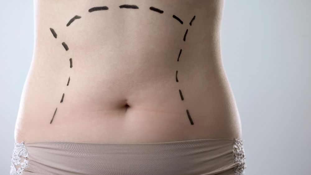 Plastic Surgery After Massive Weight Loss