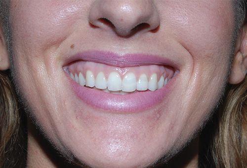 woman's smile