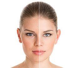 Botox Dermal Fillers results