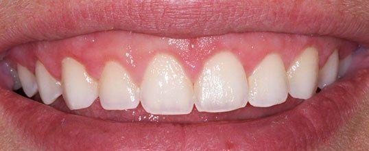 gum grafting benefits