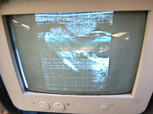 ultrasound images