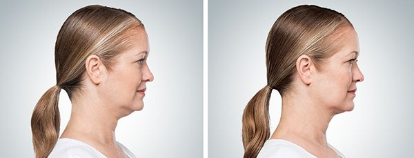 woman before and after kybella