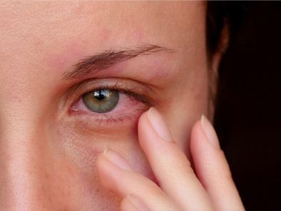 Why You Should Always Seek Medical Care If You Are Suffering from an Eye Infection