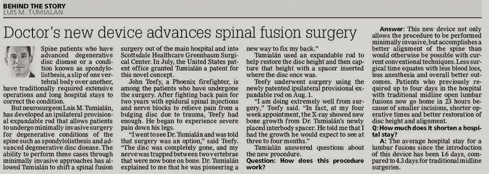 spine fusion surgery newspaper article