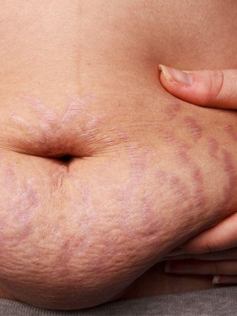 ultrasound liposuction