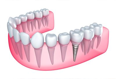 dental implant structure