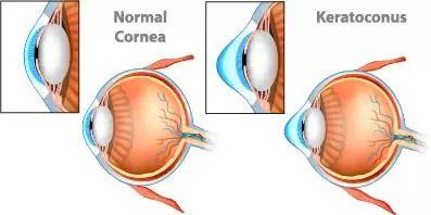 Keratoconus Treatments