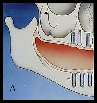 Sinus bone graft - A