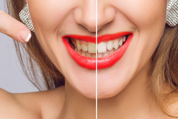 woman's smile before and after teeth whitening