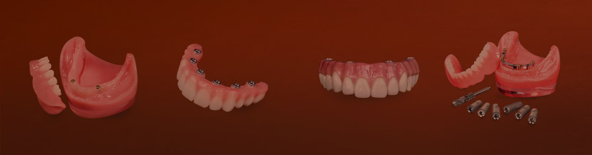 types of implant dentures