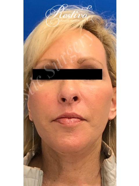 after Renuvion Facial Resurfacing
