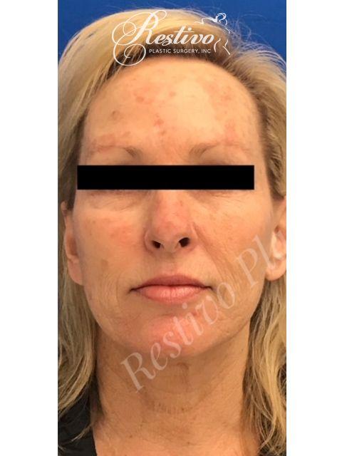 before Renuvion Facial Resurfacing