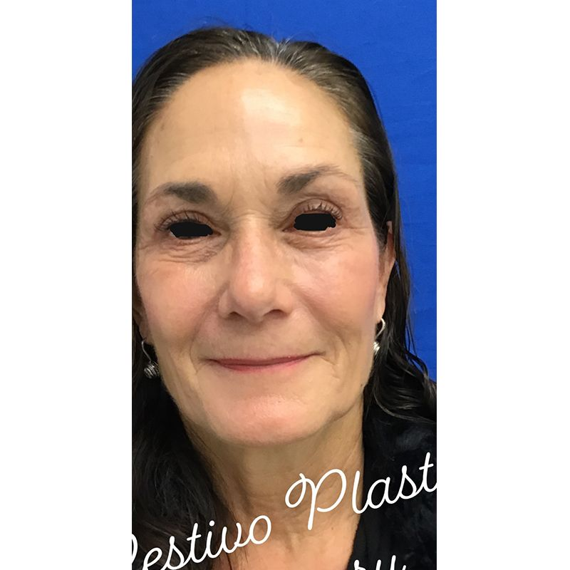 after upper eyelid surgery