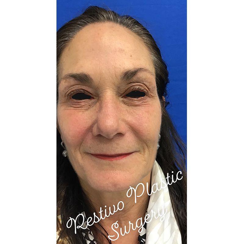before upper eyelid surgery