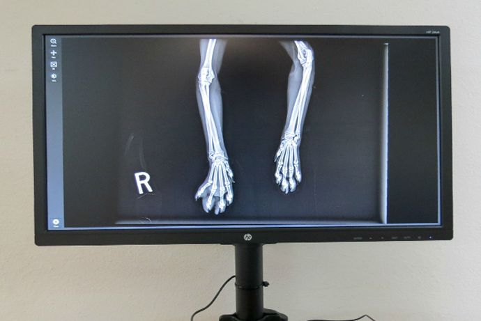 Digital Radiology (X-Rays)