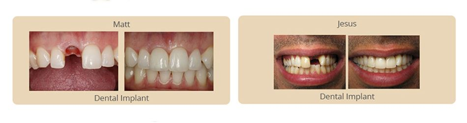 before and after results of dental implants