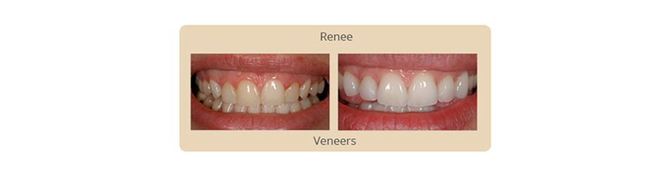 before and after results veneers