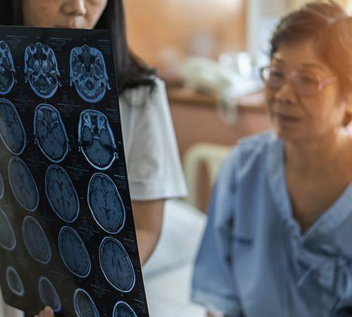 Traumatic Brain Injury and Stroke