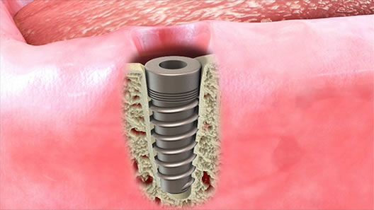 Implant for Crown and Bridge illustration