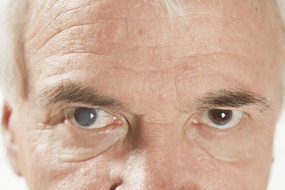 Early Signs of Glaucoma