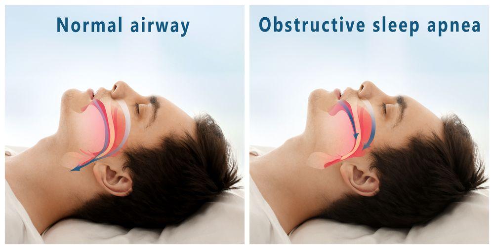 Sleep Apnea Treatment in Massapequa NY