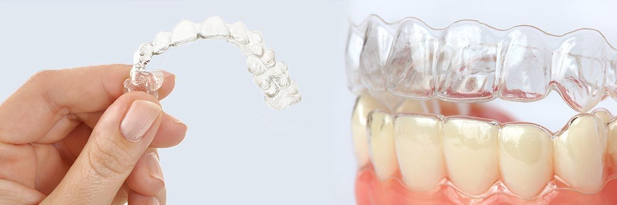 holding clear correct braces