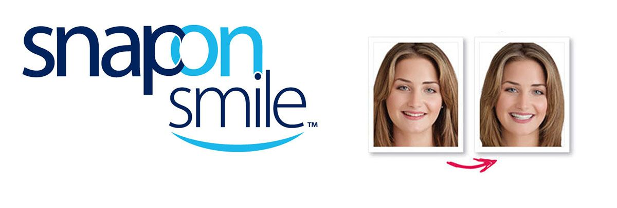 snap on smile logo