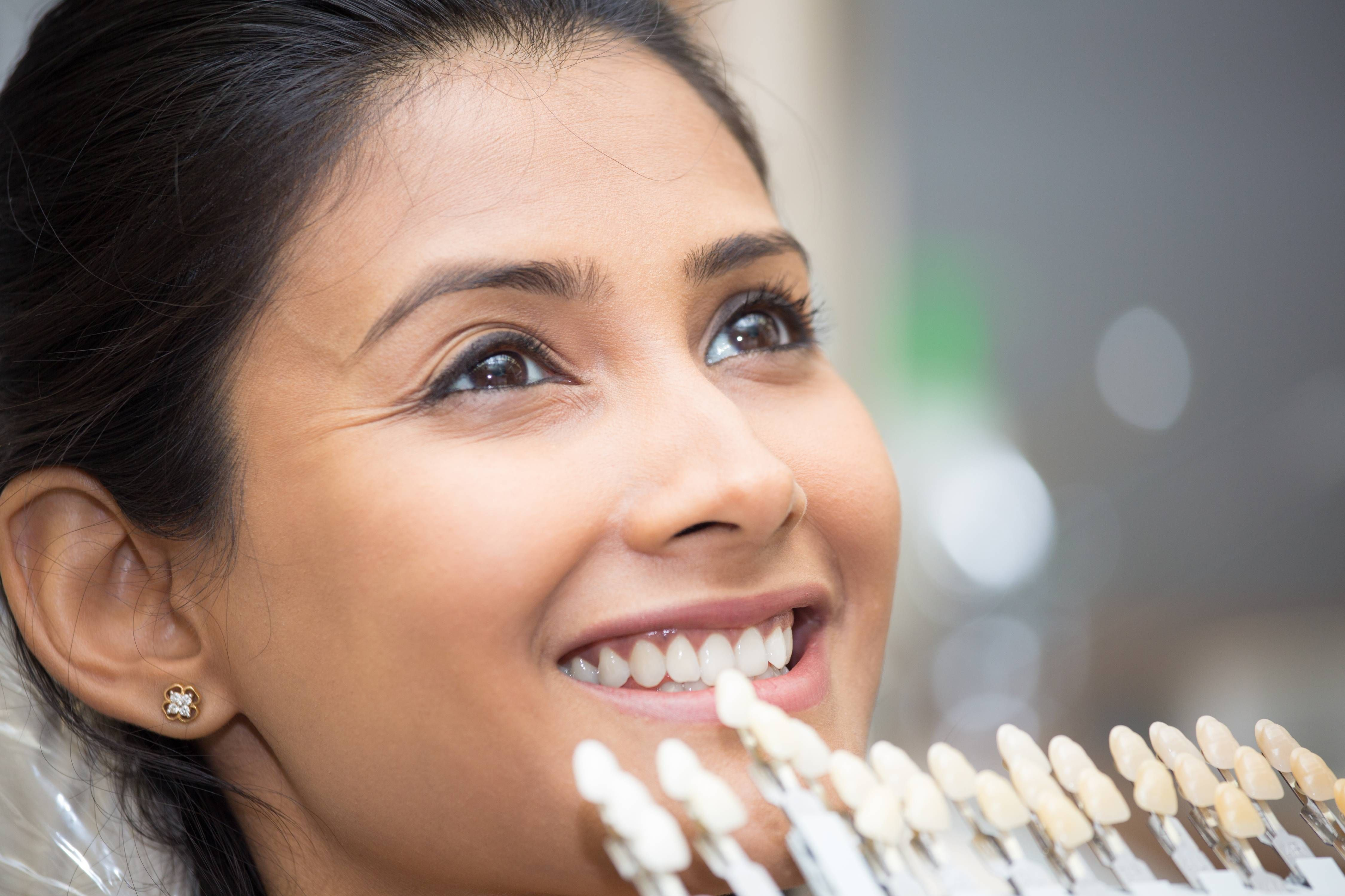 How Teeth Whitening Can Transform Your Smile
