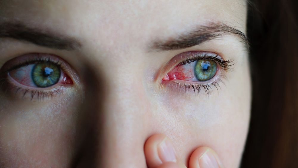 Patient with pink eye