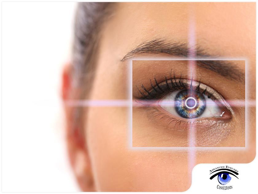 4 LASIK MYTHS EXPLAINED AND DEBUNKED