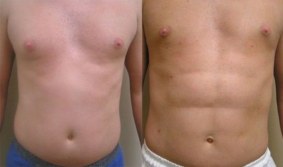 Body Contouring Gallery | Aesthetic Surgical in Metairie, LA