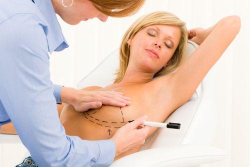 doctor marking breast