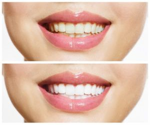 Clearwater FL Cosmetic Dentist Offers Teeth Whitening