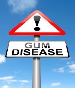 Gum Disease Symptoms | Andrew Holloman, DDS, Clearwater FL