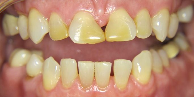 composite bonding smile gallery