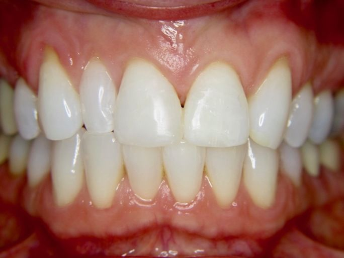after dental veneer
