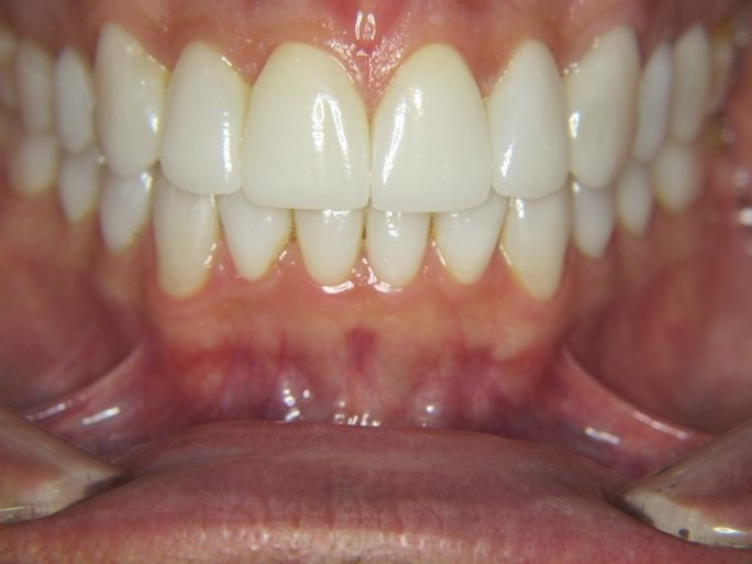 after dental veneers