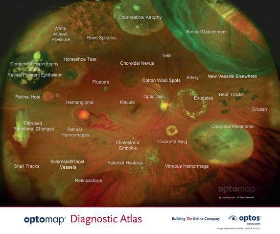 optomap imagery