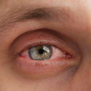 #EyeOpeners -- BlephEx