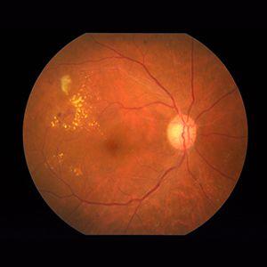Retinal Wellness Clinic