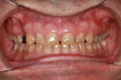 Before bruxism damage